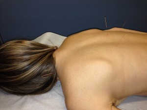 Dr. Ostrovsky Performing Acupuncture of the Back.