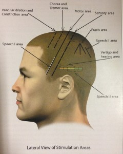Lateral View of Sculp Acupuncture Areas