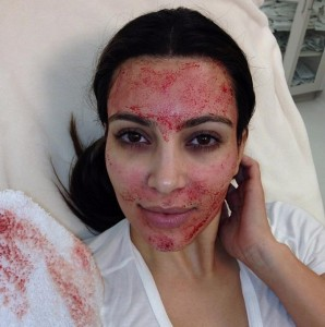 Kim Kardashian during a Vampire Facelift in March, 2013.